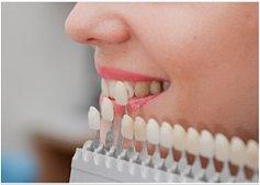 Эстетическое протезирование и реставрация зубов