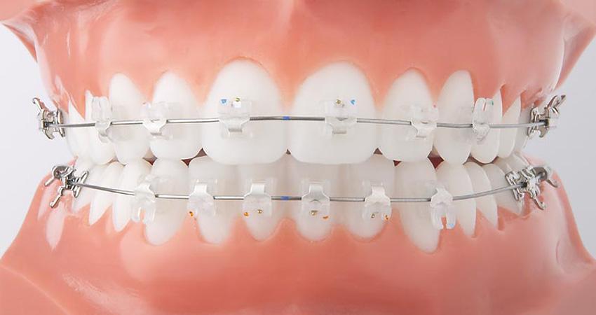 Ортодонтия в Ульяновске, цены, стоимость