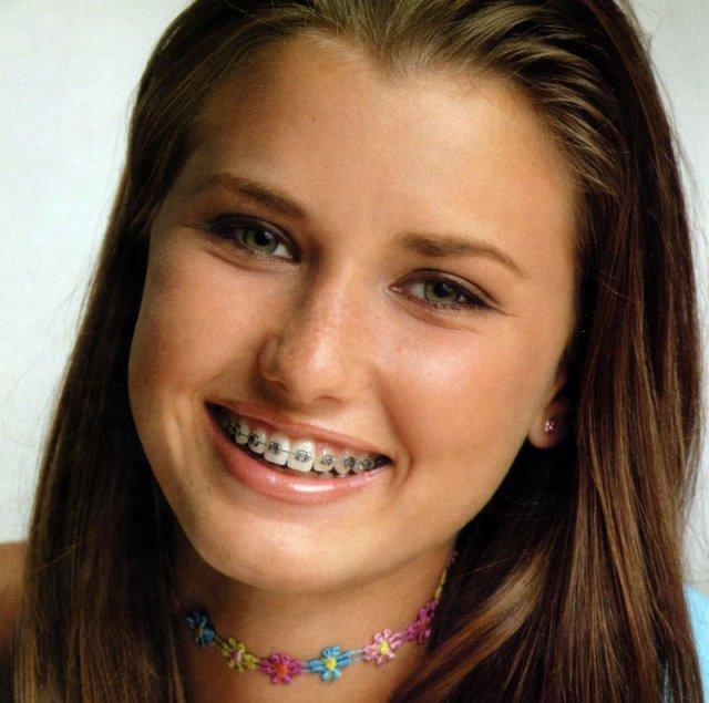 Ортодонтия занимается исправлением прикуса и выравниванием зубов.