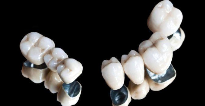 Металлокерамические коронки на зубы.