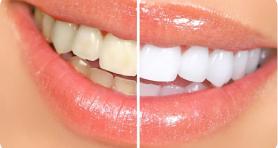 Зубы чистые даже в труднодоступных местах