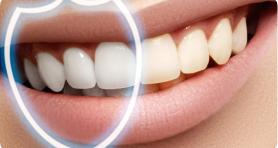 Зубы светлее на несколько тонов