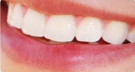 Зубы защищены от кариеса и налета
