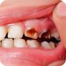 Разрушение зубов
