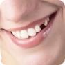 Отсутствие 1-3 зубов