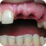 Множественное отсутствие зубов